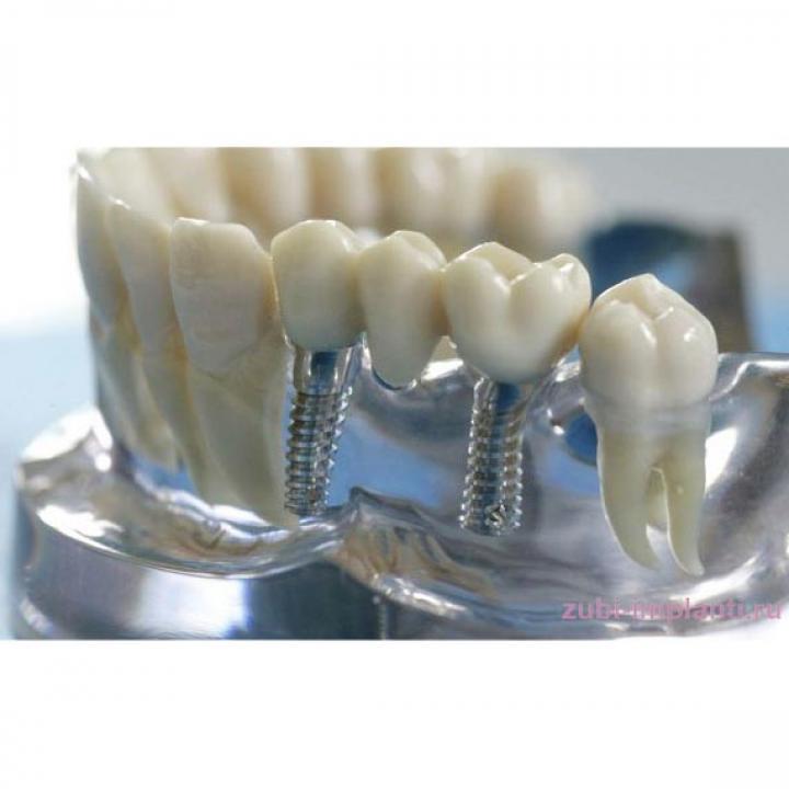 GBdental implantáció